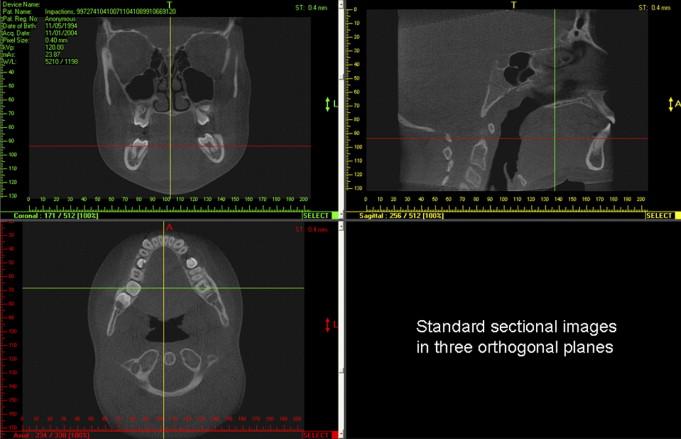 The Basics of Maxillofacial Cone Beam Computed Tomography ...