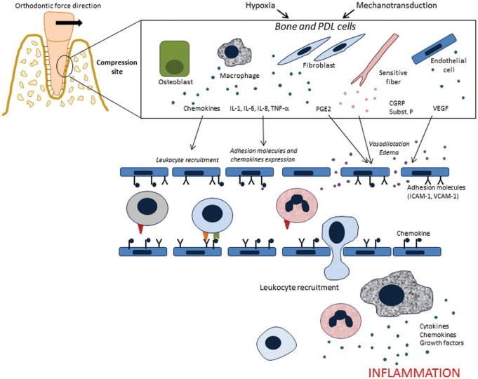 inflammation and tooth movement the role of cytokines, chemokines Adult Teeth Diagram download full size image