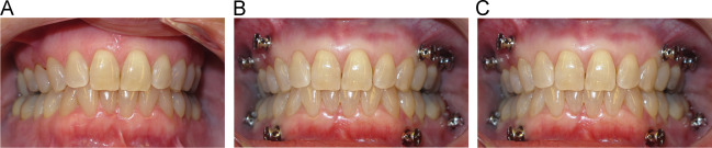 Orthognathic surgery for the Invisalign patient - ScienceDirect