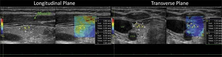 Differentiation of Benign and Malignant Thyroid Nodules by Using