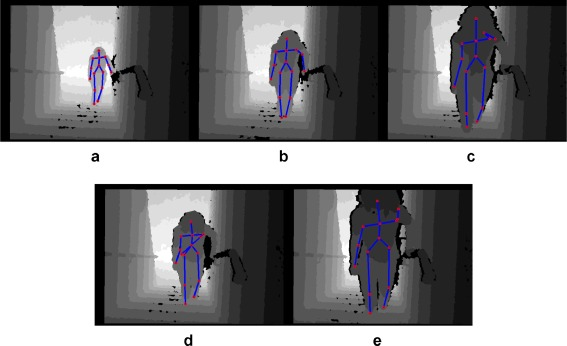 A comparative study of pose representation and dynamics modelling