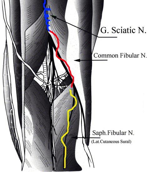 Sciatic Nerve Varices Sciencedirect