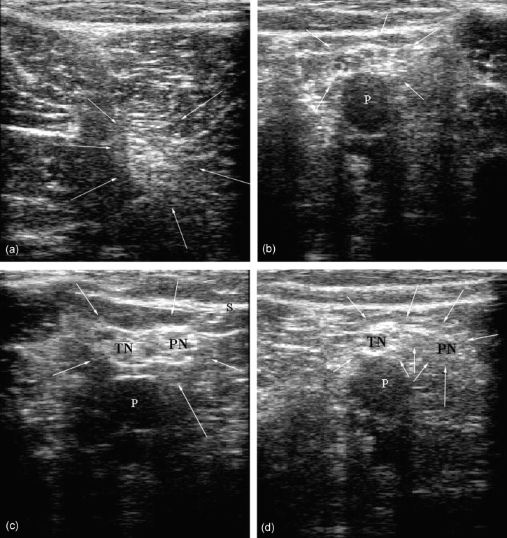 Ultrasound Observation of the Sciatic Nerve and its Branches at the ...