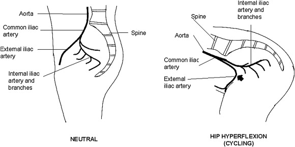 Iliac Artery Compression in Cyclists: Mechanisms, Diagnosis and ...