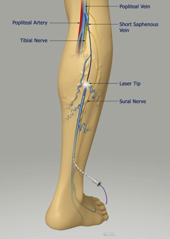 Endovenous Laser Ablation of the Small Saphenous Vein: Prospective ...