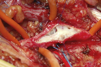 Reconstructive Surgery for Deep Vein Reflux in the Lower