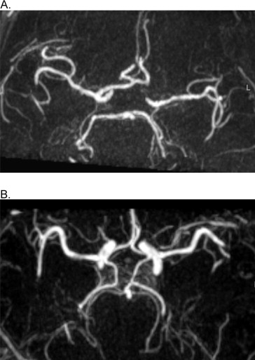 Incompleteness Of The Circle Of Willis Is Related To Eeg Based