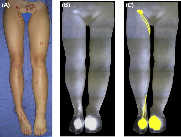 Indocyanine Green Lymphography Findings In Primary Leg Lymphedema Sciencedirect