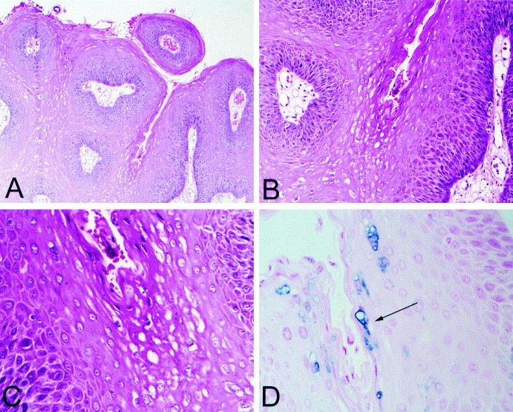condyloma acuminata histo