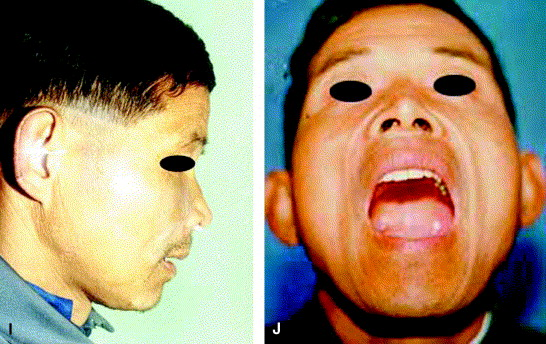 Immediate reconstruction of maxilla with bone grafts supported by