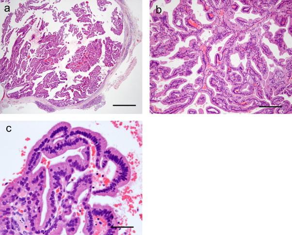 Intraductal papilloma of salivary glands, Ductal papilloma of salivary gland origin