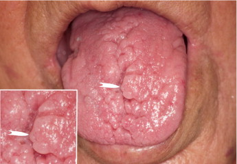 8 Causes & Effective Home Remedies for Lie Bumps (Transient ...