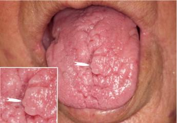 papillitis