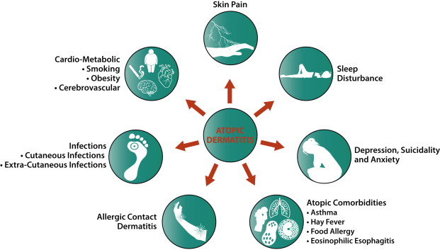 Comorbidities and the impact of atopic dermatitis