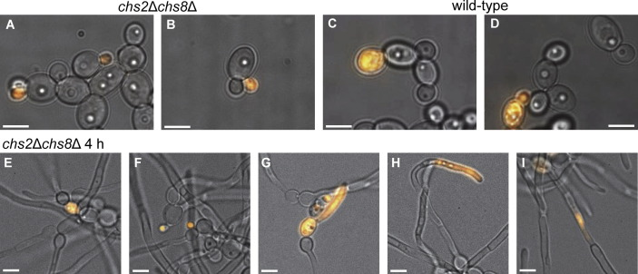 Cell wall protection by the Candida albicans class I chitin