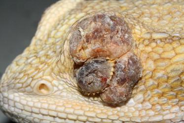 can intraductal papilloma be cancerous jajasca enterobius vermicularis