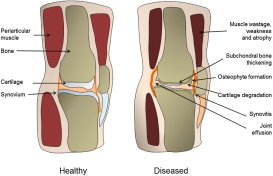 In vitro models for the study of osteoarthritis sciencedirect healthy and diseased synovial joints showing the changes in the entire joint organ bone weakness and wearing has been reported as well as synovial ccuart Choice Image