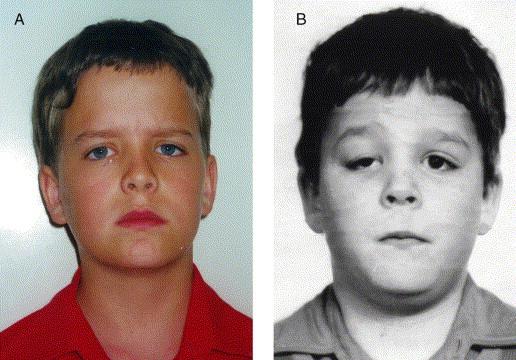 Mild facial asymmetry