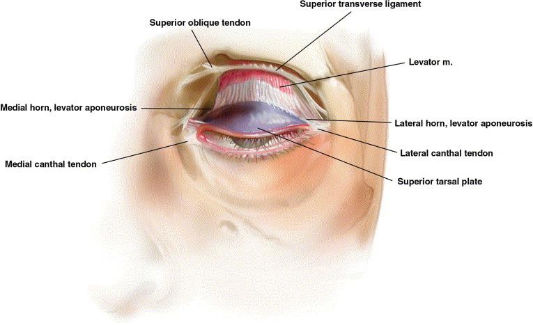 Transconjunctival upper lid blepharoplasty - ScienceDirect