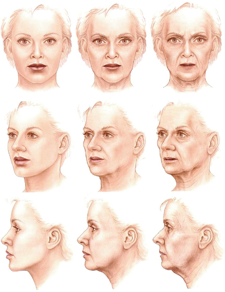 The anatomy of the aging face: Volume loss and changes in 3 ...