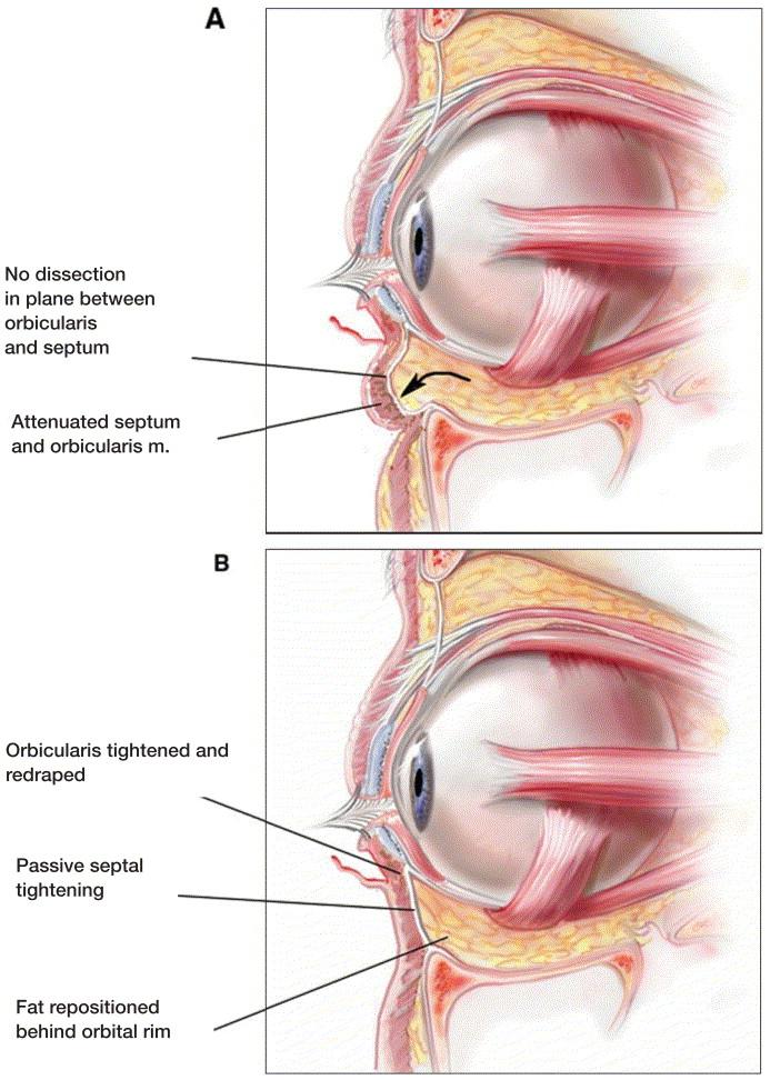 Managing Postseptal Fat In Periorbital Rejuvenation Anatomic