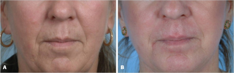 Facial Dermal Fillers: Selection of Appropriate Products and
