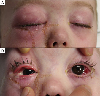 A Child With Rapidly Progressive Necrotizing Group A Streptococcal