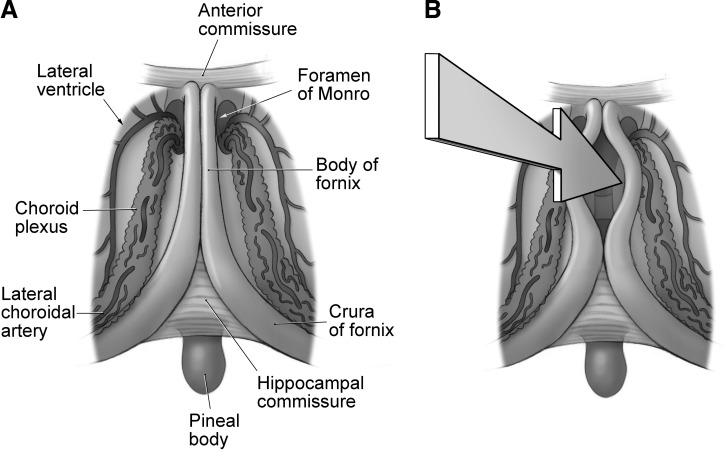 Operative Techniques For Tumors In The Third Ventricle Sciencedirect