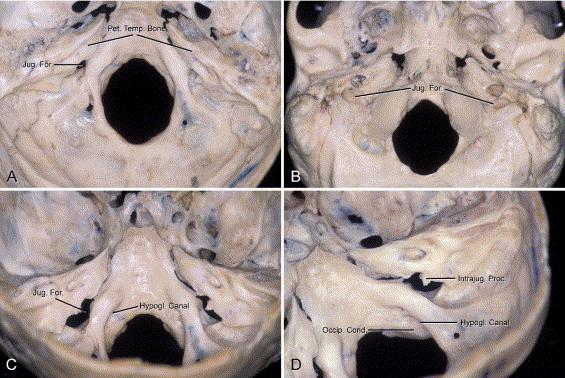 Surgical Anatomy Of The Jugular Foramen Sciencedirect