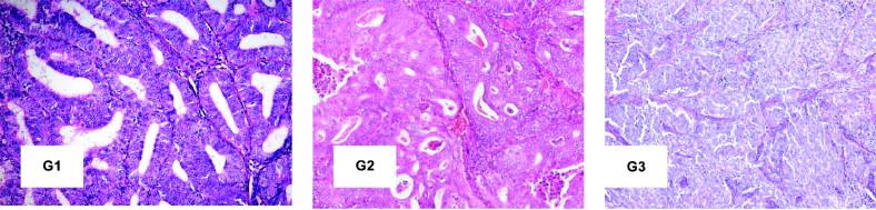 cancer endometrial g2