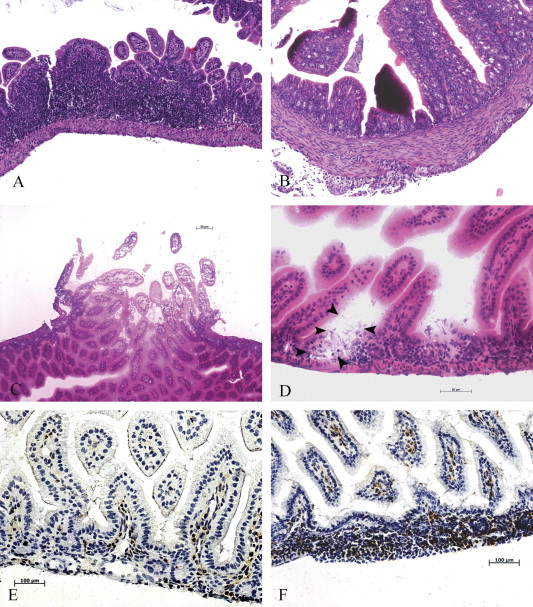 Spontaneous development of intestinal and colonic atrophy