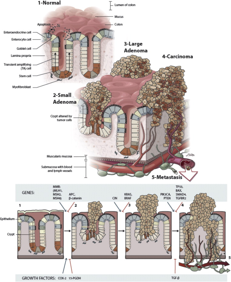 The Multifaceted Role Of The Intestinal Microbiota In Colon Cancer Sciencedirect