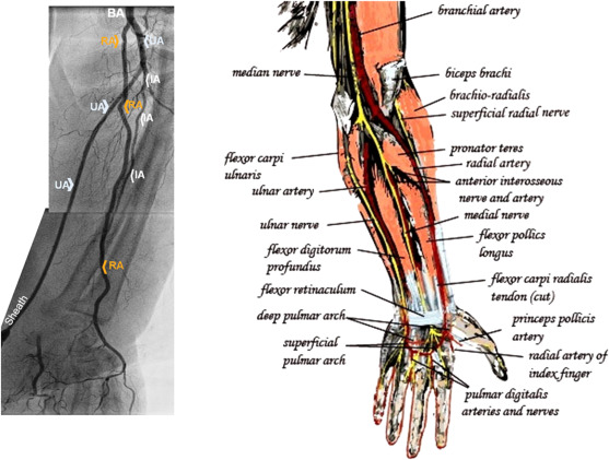 Ulnar artery: The Ulysses ultimate resort for coronary procedures ...