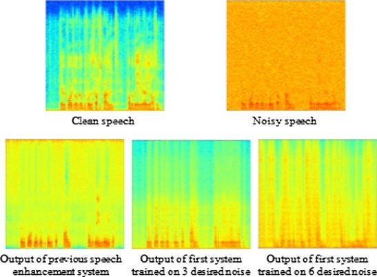 Enhanced smart hearing aid using deep neural networks - ScienceDirect