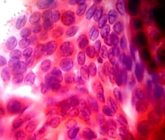 common diagnostic pitfalls in thyroid cytopathology