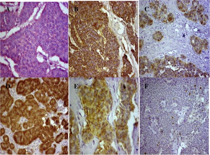 Neuroendocrine cancer ovarian, Romania Cancer Oranisations and Resources | CancerIndex