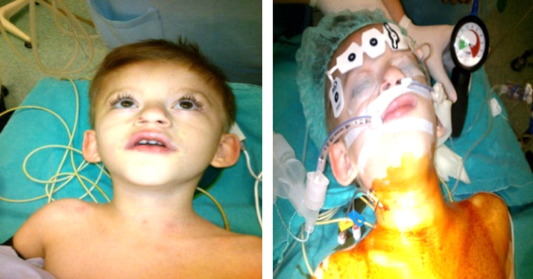 Successful Anesthetic And Airway Management In Coffin Siris Syndrome