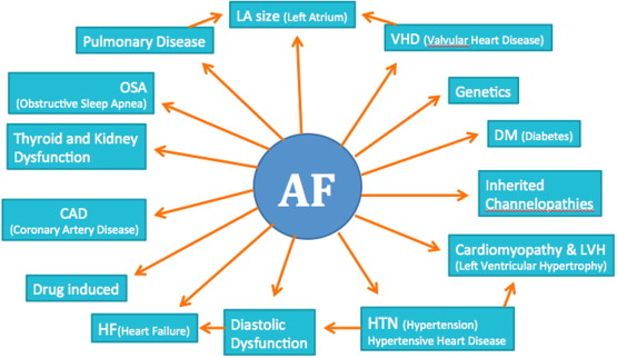 Atrial Fibrillation Concept Map.Update On Atrial Fibrillation Sciencedirect