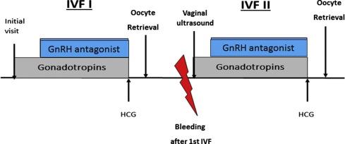 Random-start IVF treatment: An emergent fertility preservation