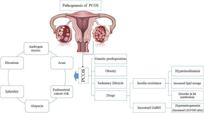 A review on role of medicinal plants in polycystic ovarian