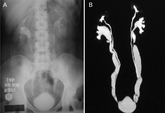 An Unusual Double Fungal Infection Of The Bladder Due To Candida And Cladosporium Sciencedirect