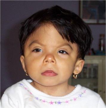 Opitz C syndrome: Trigonocephaly, mental retardation and