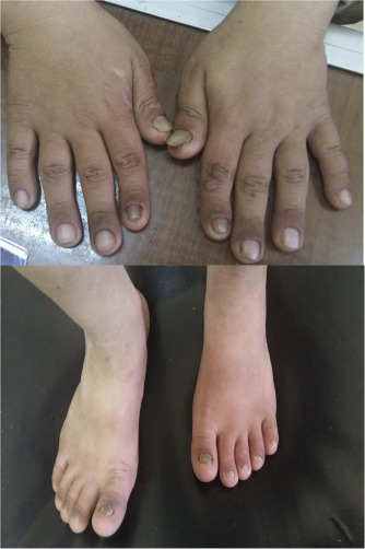 Christ-Siemens-Touraine syndrome with cleft palate, absent