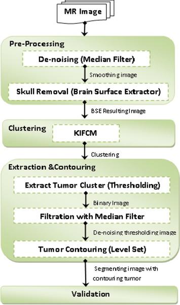 Brain tumor segmentation based on a hybrid clustering