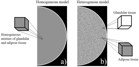 Homogeneous vs  patient specific breast models for Monte