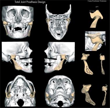 Reconstrucción de la articulación temporomandibular postraumática ...