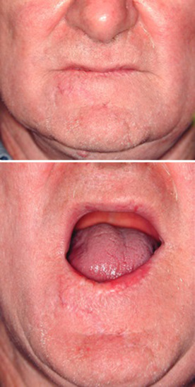 Guidance Flap Choice For Lip Cancer Principles Timing And