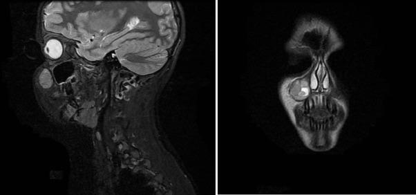 cancer sarcoma de ewing