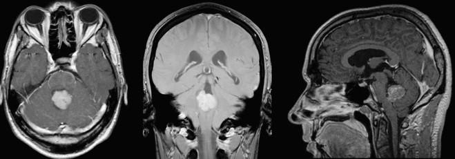 Tumor papiloma de plexos coroides. Human papillomavirus vaccine market