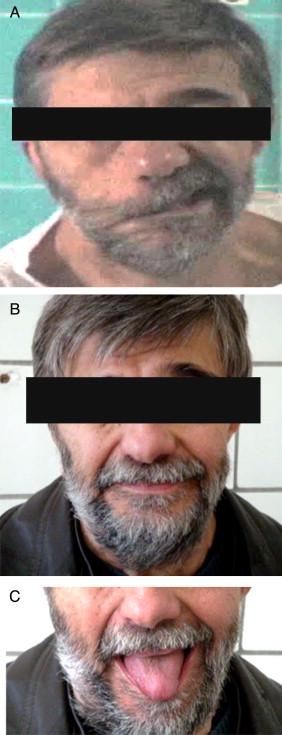 Cirugía de la parálisis facial. Conceptos actuales - ScienceDirect